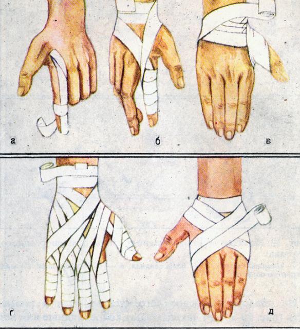 Перевязать кисть руки бинтом