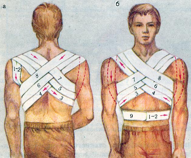 Крестообразная повязка при переломе ключицы.