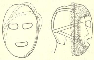 Рис. 6. Ветрозащитная маска